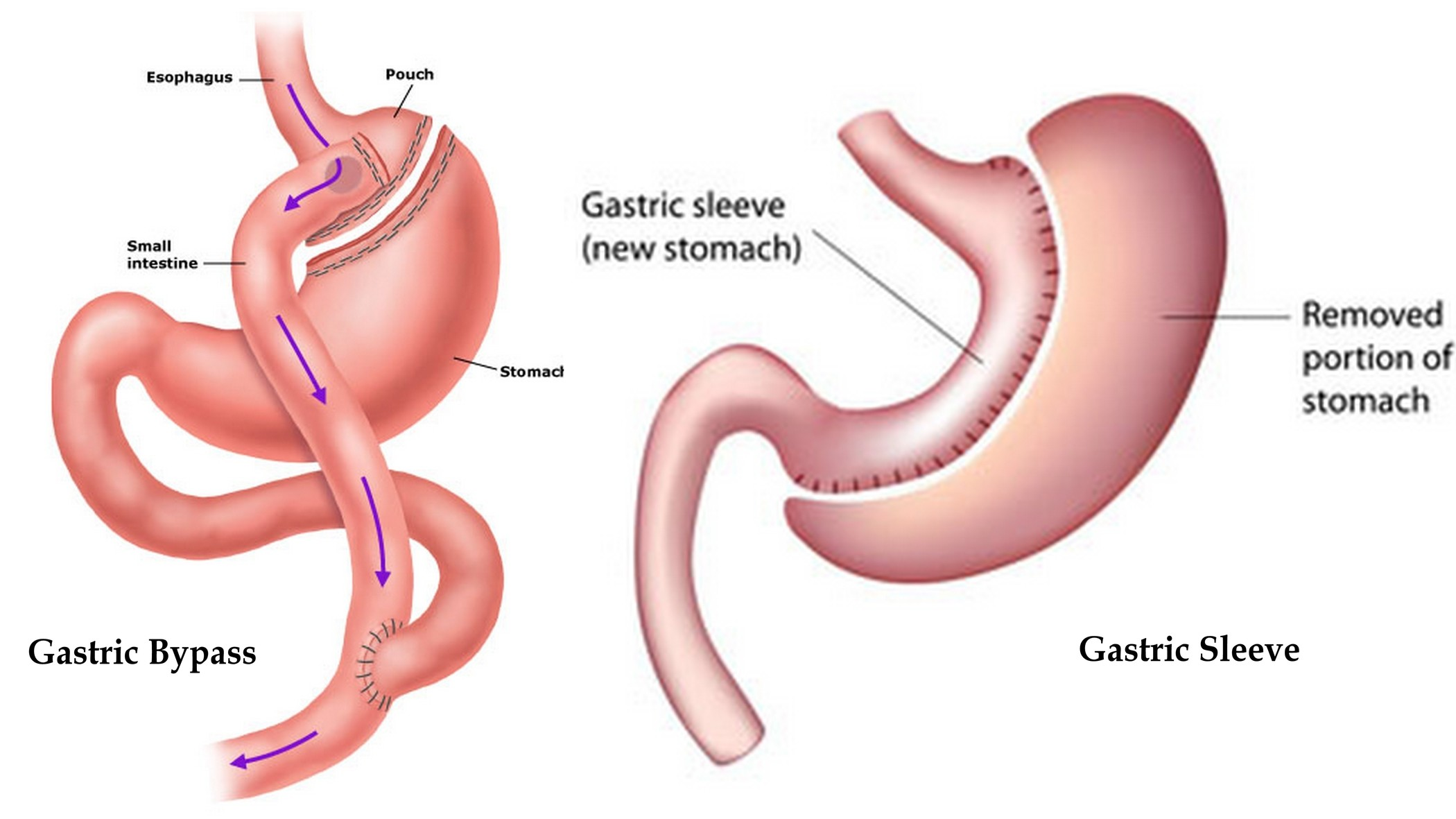 What is the difference between Gastric Bypass and Gastric Sleeve surgery?